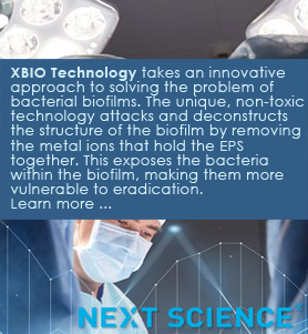 Total Contact Casting from M-Med